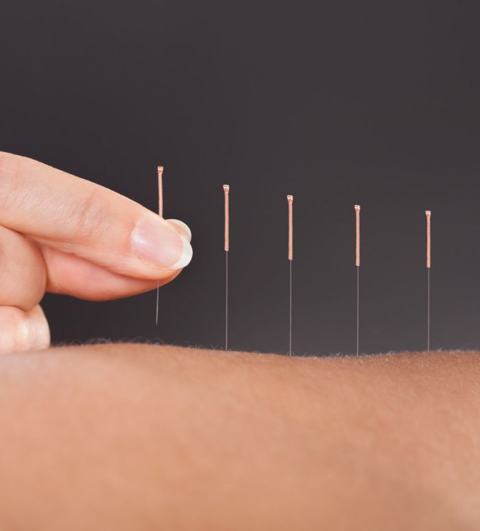 acupuncture services at cary acupuncture clinic
